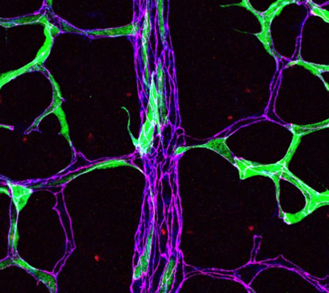 Microscoe image illustrating the phosphorylation status of endothelial adherens junctions