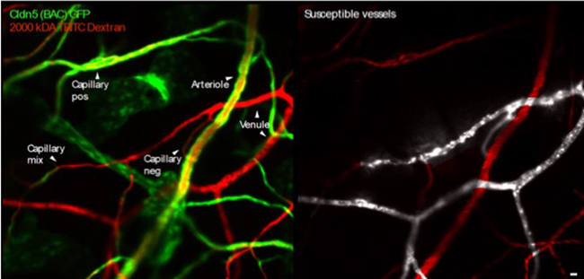 Microscope images illustrating leakage from blood vessels